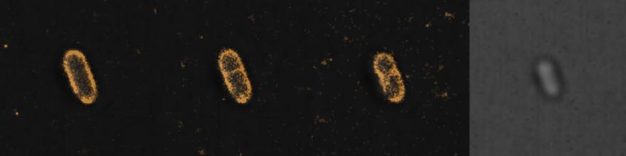 Sample1_celldivision_+BF